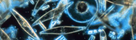 Assorted diatoms as seen through a microscope.